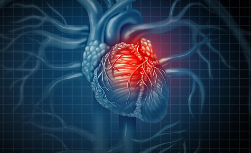Blue Graphic of the Heart With A Heart Attack Highlighted in Red