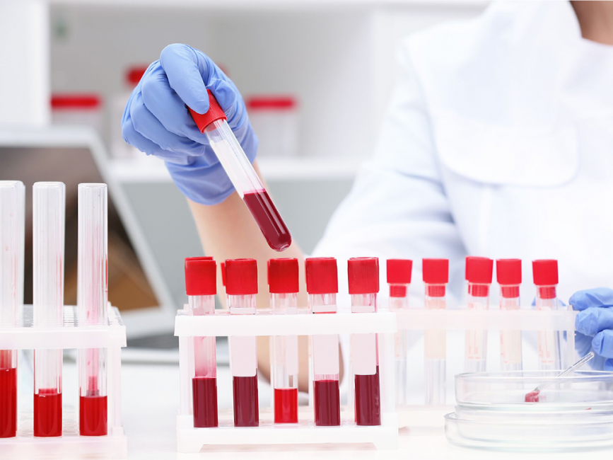 Lab technician wearing blue gloves and reviewing test tube of blood in vials