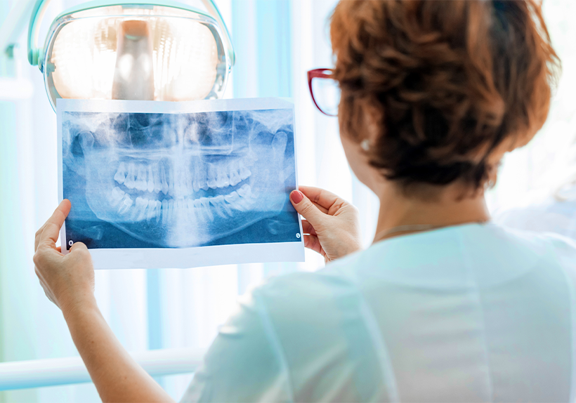 dentist looking at X-ray for periodontal disease